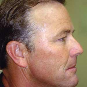Skin Rejuvenation Dr Kurgis